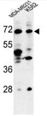 AP50586PU-N - TSPEAR / C21orf29