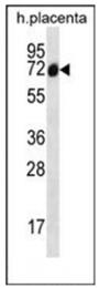 AP53813PU-N - SCLT1