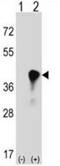 AP50624PU-N - C4b-binding protein beta