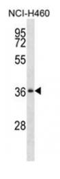 AP53861PU-N - SERPINB1