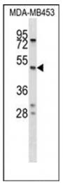 AP53858PU-N - SERPINA5