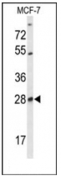 AP53842PU-N - Selenoprotein T (SELT)