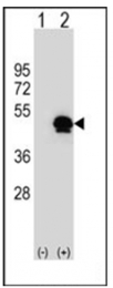 AP53862PU-N - SERPINE1 / PAI1