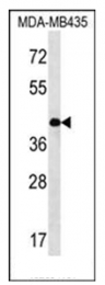 AP53863PU-N - SERPINE2