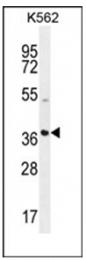 AP53875PU-N - SFRP4