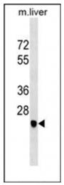 AP53887PU-N - Delta-sarcoglycan