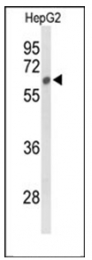 AP53892PU-N - Sulphamidase / SGSH