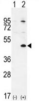 AP54235PU-N - TGIF1