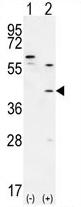 AP54234PU-N - TGIF1