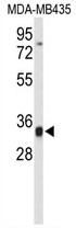 AP54228PU-N - TFPT