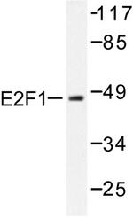 AP06386PU-N - E2F1
