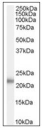 AP16632PU-N - KLK2 / Kallikrein-2
