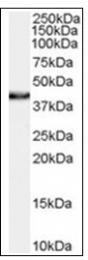 AP16547PU-N - NHEJ1 / Protein cernunnos