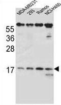 AP54207PU-N - TCRB