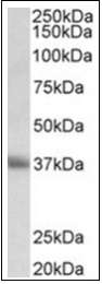 AP31848PU-N - CD7