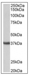 AP31850PU-N - Apolipoprotein J / Apo J