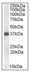AP16848PU-N - Apolipoprotein J / Apo J