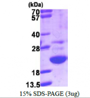 AR39145PU-L - Galectin-related protein / GRP