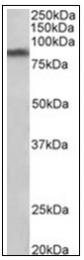 AP31852PU-N - SLC6A3 / DAT
