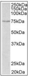 AP31853PU-N - SLC6A4 / SERT
