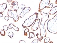 AM50098PU-S - Chorionic Gonadotropin (hCG)