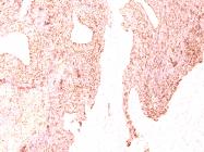 AM50102PU-S - Chromogranin A