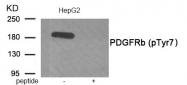 AP55863PU-S - CD140b / PDGFRB