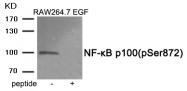 AP55875PU-S - NFKB2 / NF-kappa-B p100/p52