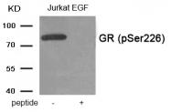 AP55889PU-S - Glucocorticoid receptor