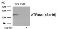 AP55890PU-S - ATP1A1