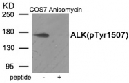 AP55917PU-S - CD246 / Anaplastic lymphoma kinase