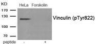 AP55923PU-S - Vinculin (VCL)