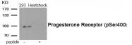 AP55939PU-S - Progesterone receptor