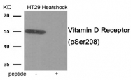AP55941PU-S - Vitamin D3 receptor / NR1I1