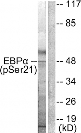 AP55691PU-S - CEBPA
