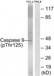 AP55692PU-S - Caspase-9