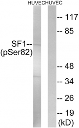 AP55704PU-S - Splicing factor 1 (SF1)