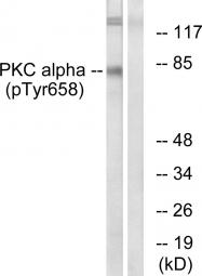 AP55716PU-S - PRKCA