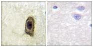 AP55719PU-S - CD115