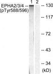 AP55721PU-S - EPHA2/3/4
