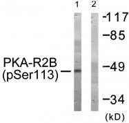 AP55723PU-S - PRKAR2B