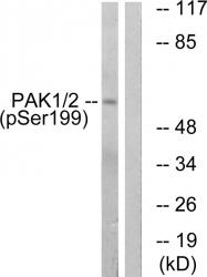 AP55728PU-S - PAK1