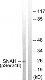 AP55737PU-S - SNAI1