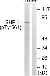 AP55745PU-N - PTPN6