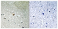 AP55750PU-S - CD246 / Anaplastic lymphoma kinase