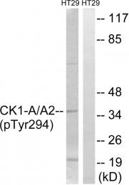 AP55752PU-S - CSNK1A1