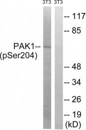 AP55769PU-S - PAK1