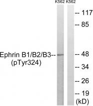 AP55798PU-S - Ephrin-B1/B2/B3
