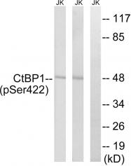 AP55814PU-S - CTBP1