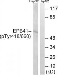 AP55817PU-S - EPB41 / Protein 4.1